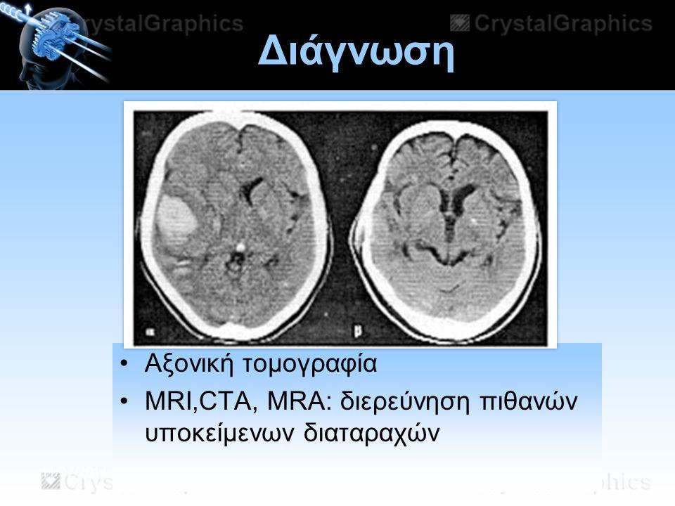 11/07/2014 Διάγνωση Αξονική τομογραφία MRI,CTA, MRA: διερεύνηση πιθανών υποκείμενων διαταραχών
