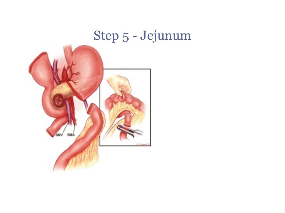 Step 5 - Jejunum