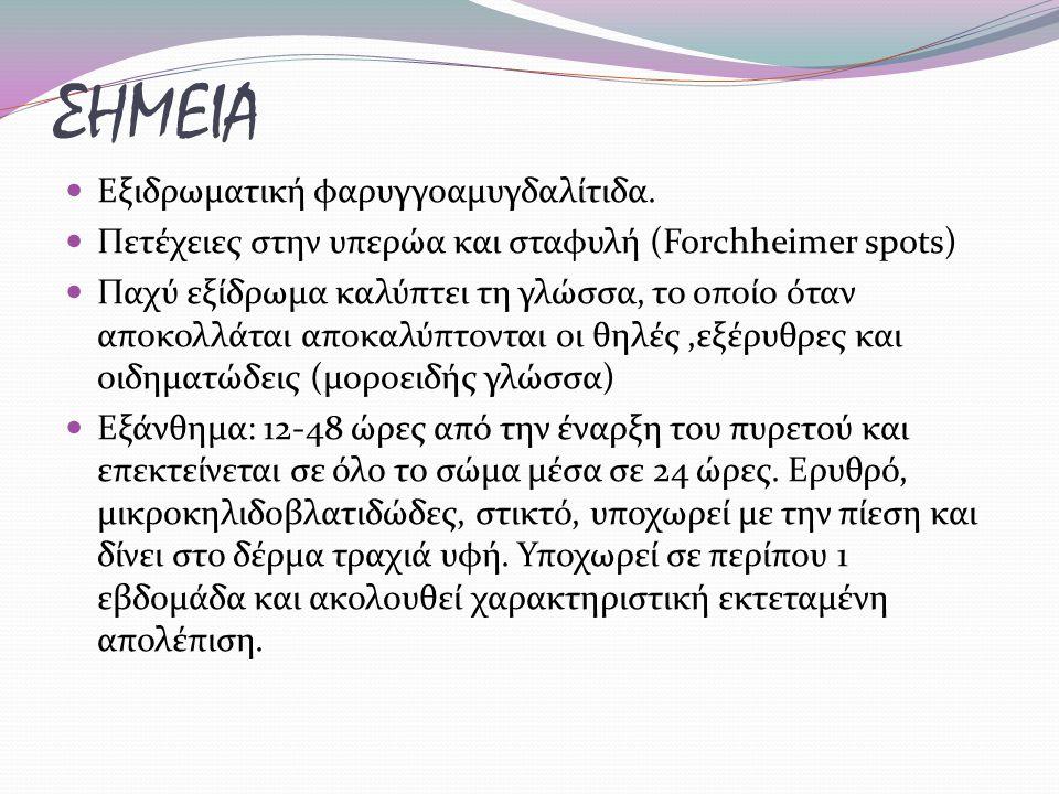 ΣΗΜΕΙΑ Εξιδρωματική φαρυγγοαμυγδαλίτιδα.