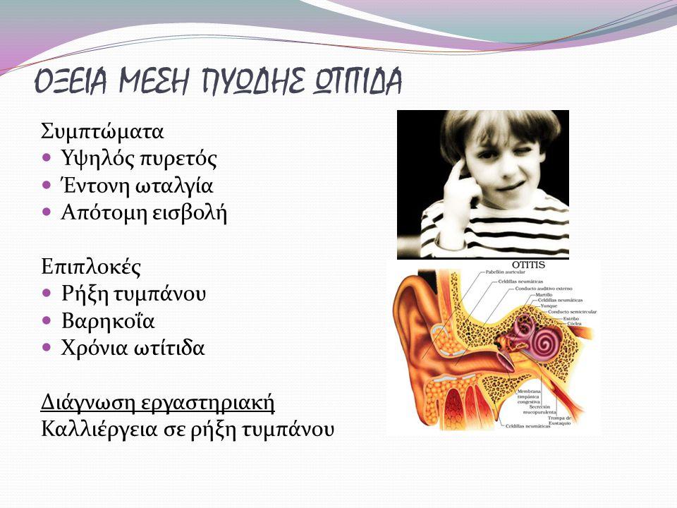 ΟΞΕΙΑ ΜΕΣΗ ΠΥΩΔΗΣ ΩΤΙΤΙΔΑ Συμπτώματα Υψηλός πυρετός Έντονη ωταλγία Απότομη εισβολή Επιπλοκές Ρήξη τυμπάνου Βαρηκοΐα Χρόνια ωτίτιδα Διάγνωση εργαστηριακή Καλλιέργεια σε ρήξη τυμπάνου