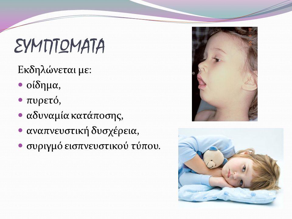 ΣΥΜΠΤΩΜΑΤΑ Εκδηλώνεται με: οίδημα, πυρετό, αδυναμία κατάποσης, αναπνευστική δυσχέρεια, συριγμό εισπνευστικού τύπου.