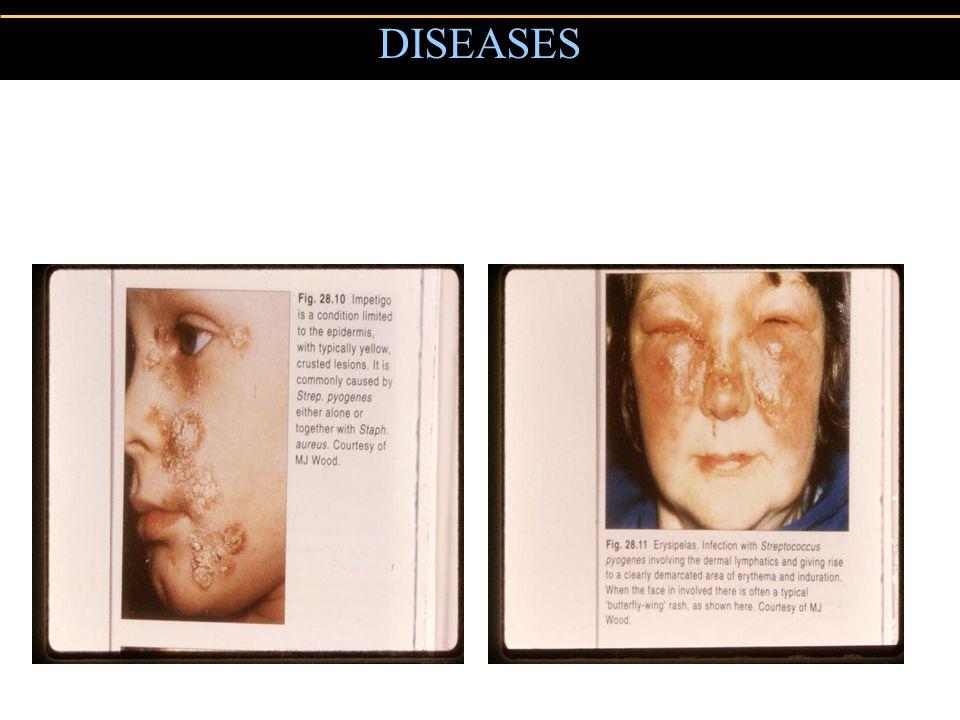 DISEASES Impetigo Erysipelas