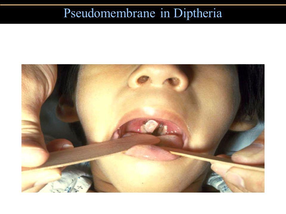 Pseudomembrane in Diptheria