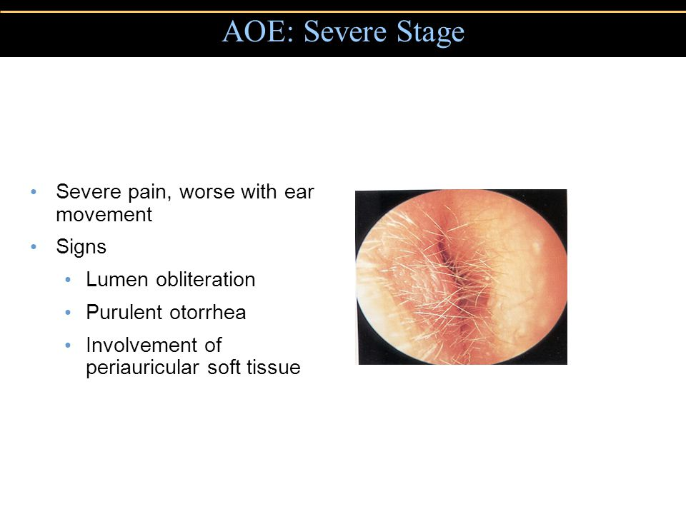 AOE: Severe Stage Severe pain, worse with ear movement Signs Lumen obliteration Purulent otorrhea Involvement of periauricular soft tissue