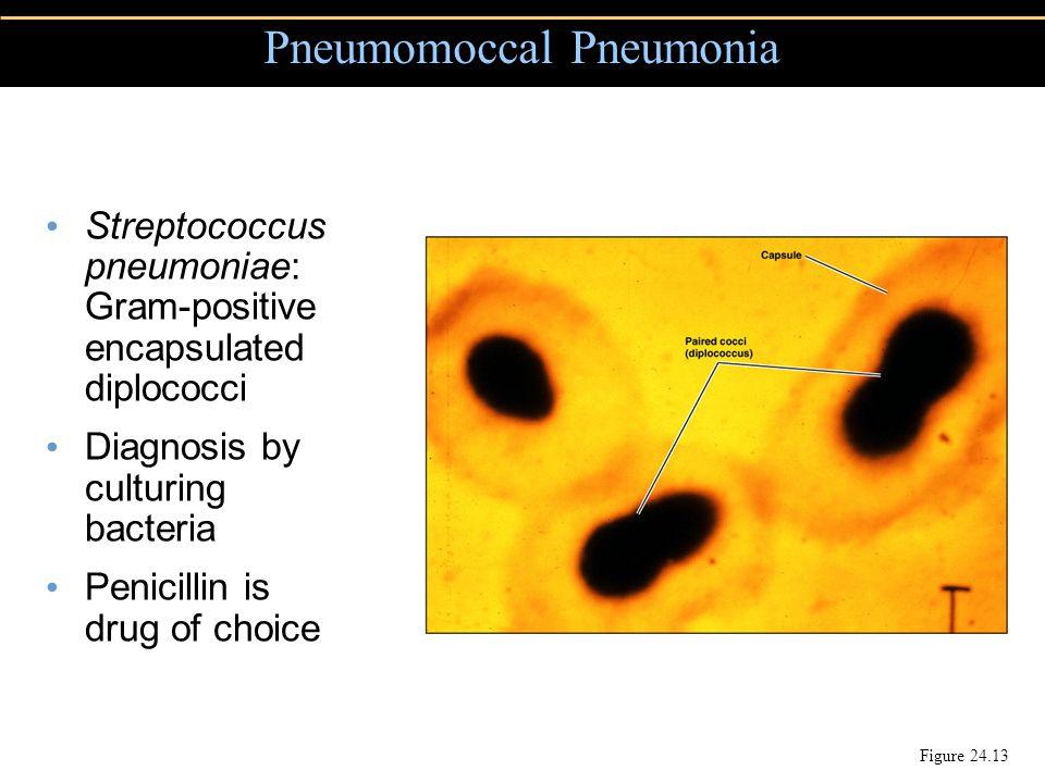 Pneumomoccal Pneumonia Figure 24.13 Streptococcus pneumoniae: Gram-positive encapsulated diplococci Diagnosis by culturing bacteria Penicillin is drug