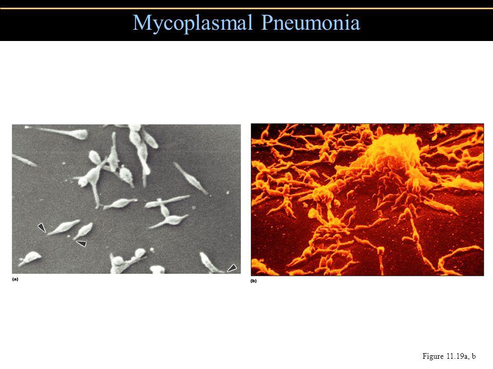 Mycoplasmal Pneumonia Figure 11.19a, b