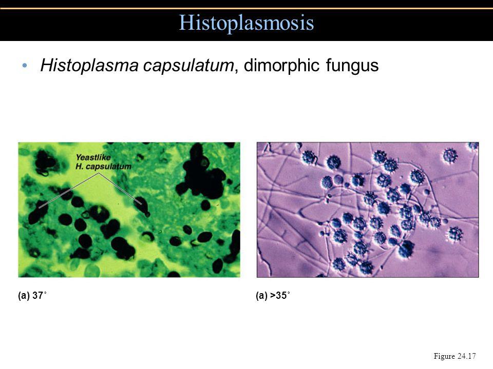 Histoplasmosis Figure 24.17 Histoplasma capsulatum, dimorphic fungus (a) 37˚(a) >35˚