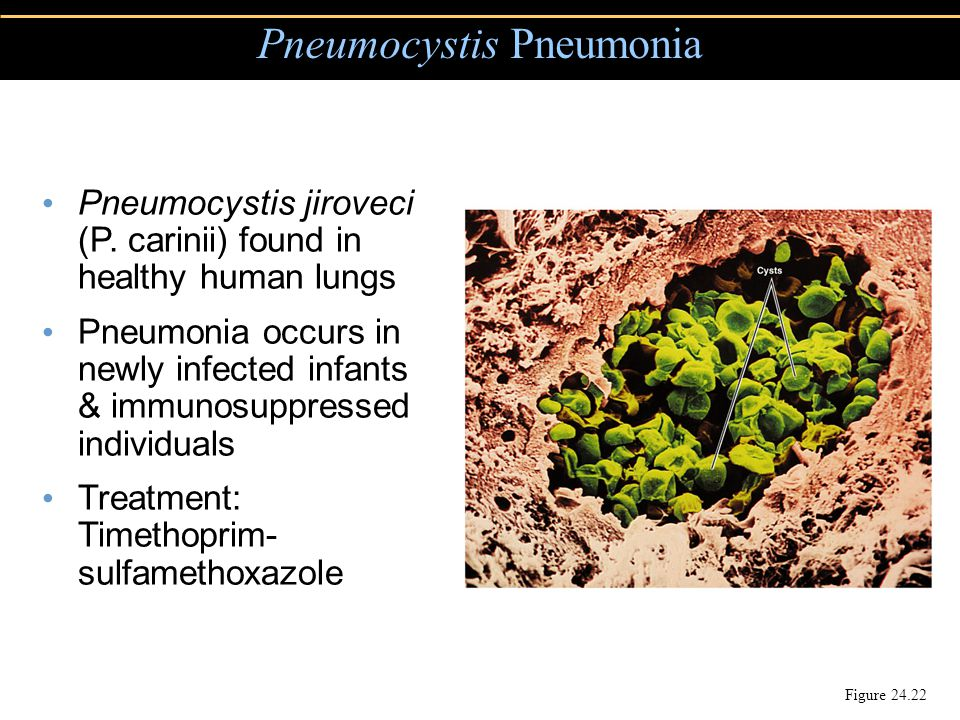 Pneumocystis Pneumonia Figure 24.22 Pneumocystis jiroveci (P. carinii) found in healthy human lungs Pneumonia occurs in newly infected infants & immun