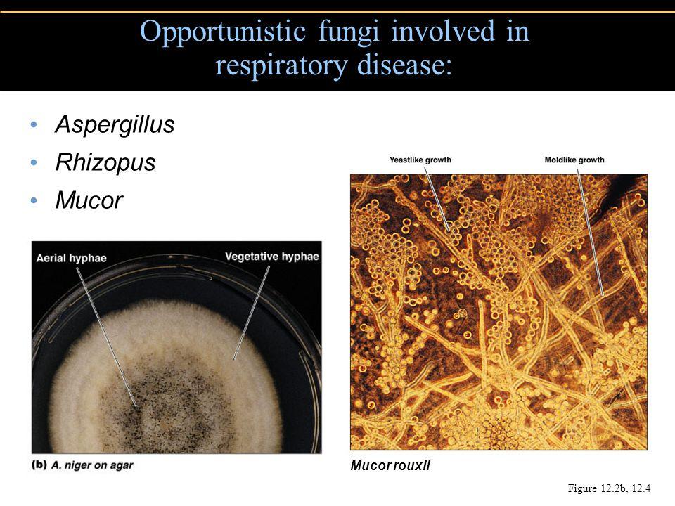 Aspergillus Rhizopus Mucor Opportunistic fungi involved in respiratory disease: Mucor rouxii Figure 12.2b, 12.4