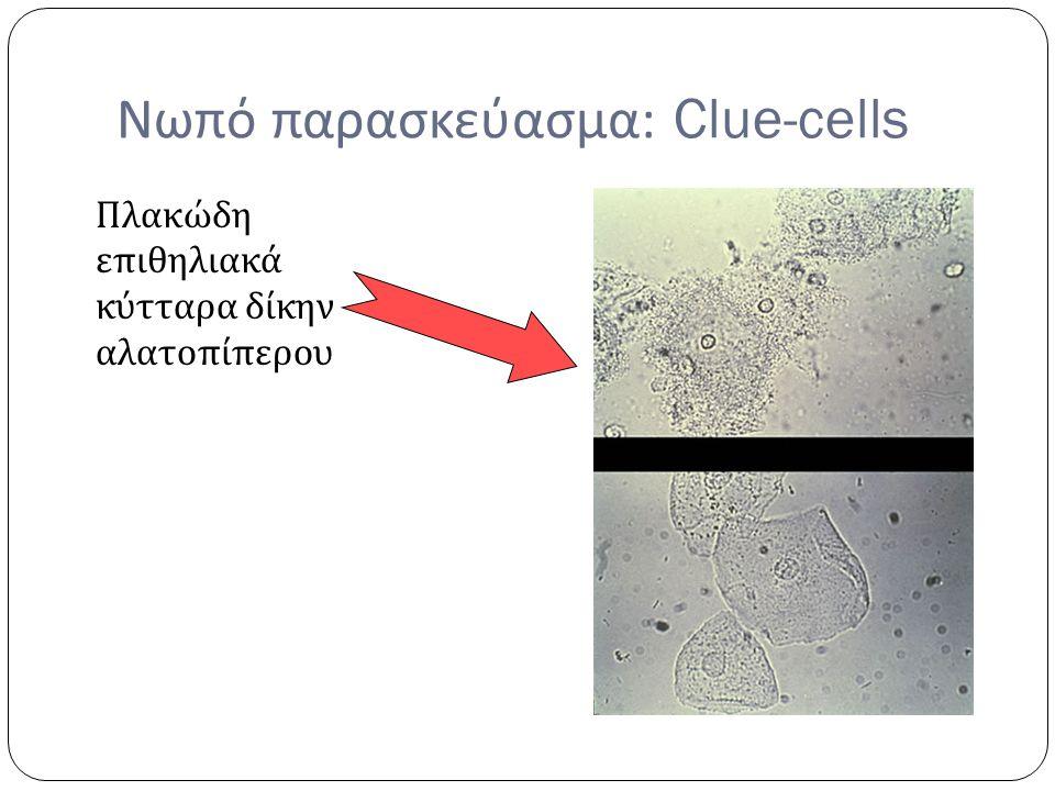 Νωπό παρασκεύασμα : Clue-cells Πλακώδη επιθηλιακά κύτταρα δίκην αλατοπίπερου