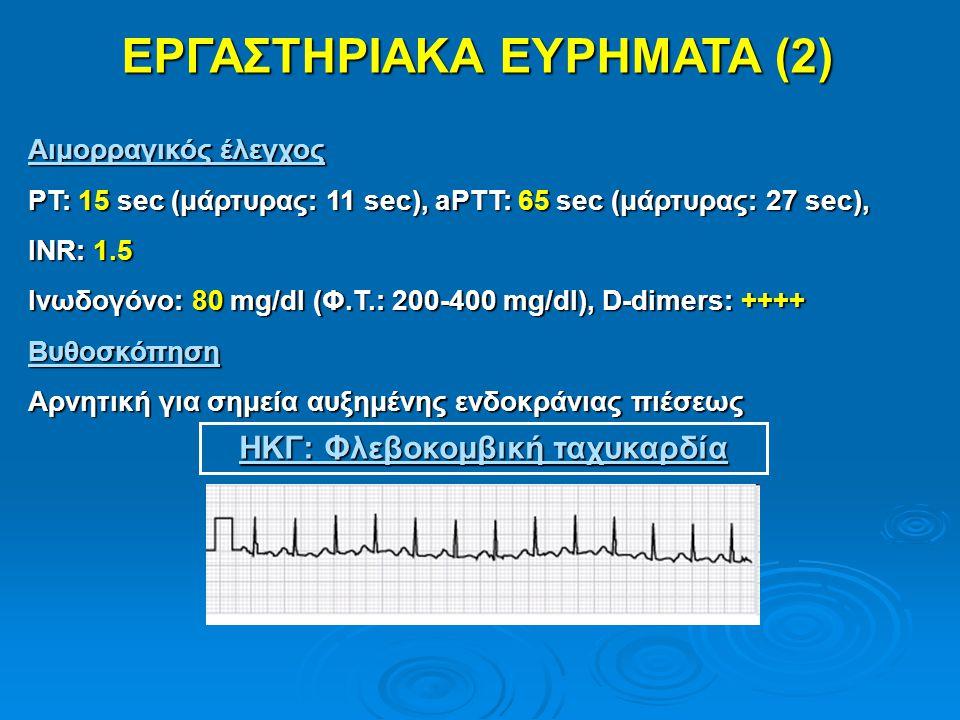 ΕΡΓΑΣΤΗΡΙΑΚΑ ΕΥΡΗΜΑΤΑ (2) Αιμορραγικός έλεγχος PT: 15 sec (μάρτυρας: 11 sec), aPTT: 65 sec (μάρτυρας: 27 sec), INR: 1.5 Ινωδογόνο: 80 mg/dl (Φ.Τ.: 200