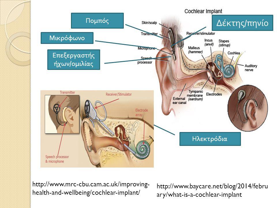 Τα μέρη ενός κοχλιακού εμφυτεύματος Το εξωτερικό τμήμα o Μικρόφωνο : προσλαμβάνει τους ήχους o Επεξεργαστής ήχων / ομιλίας : φιλτράρει και κωδικοποιεί τους ήχους o Πηνίο : τα επεξεργασμένα σήματα μεταδίδονται στο εσωτερικό τμήμα ( ηλεκτρόδια ) μέσα από ένα πηνίο.