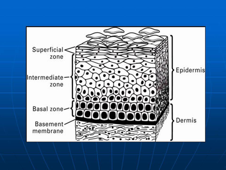 Μικροδιηθητικό πλακώδες καρκίνωμα (στάδιο ΙΑ) Διήθηση σε βάθος <3 χιλ.