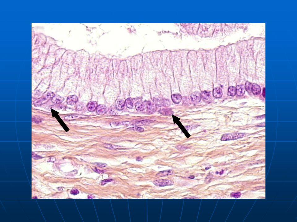 Τραχηλική ενδοεπιθηλιακή νεοπλασία (cervical intraepithelial neoplasia, CIN) CIN I (ελαφρά δυσπλασία, LSIL):τα άτυπα κύτταρα περιορίζονται στο κατώτερο τριτημόριο του επιθηλίου, ενώ τα ανώτερα 2/3 παρουσιάζουν φυσιολογική διαφοροποίηση και ωρίμανση με επιπέδωση των κυττάρων CIN I (ελαφρά δυσπλασία, LSIL):τα άτυπα κύτταρα περιορίζονται στο κατώτερο τριτημόριο του επιθηλίου, ενώ τα ανώτερα 2/3 παρουσιάζουν φυσιολογική διαφοροποίηση και ωρίμανση με επιπέδωση των κυττάρων CIN II (μέτρια δυσπλασία, HSIL): τα άτυπα κύτταρα καταλαμβάνουν το κάτω μισό του επιθηλίου,ενώ στο άνω μισό διακρίνονται στοιχεία διαφοροποίησης και ωρίμανσης.