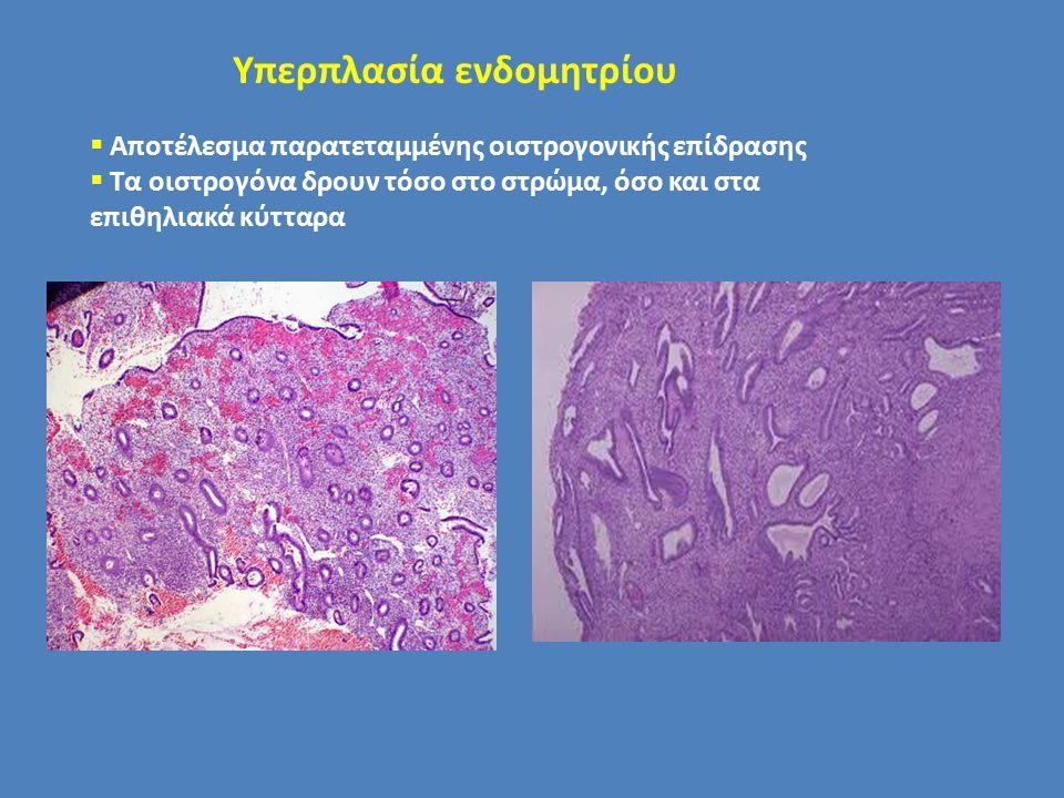 Υπερπλασία ενδομητρίου  Αποτέλεσμα παρατεταμμένης οιστρογονικής επίδρασης  Τα οιστρογόνα δρουν τόσο στο στρώμα, όσο και στα επιθηλιακά κύτταρα