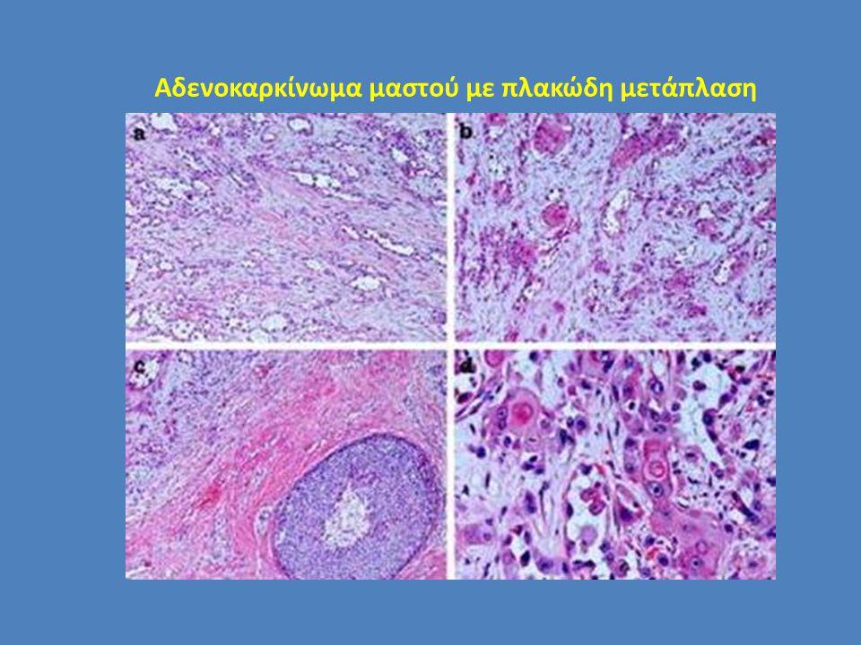 Αδενοκαρκίνωμα μαστού με πλακώδη μετάπλαση