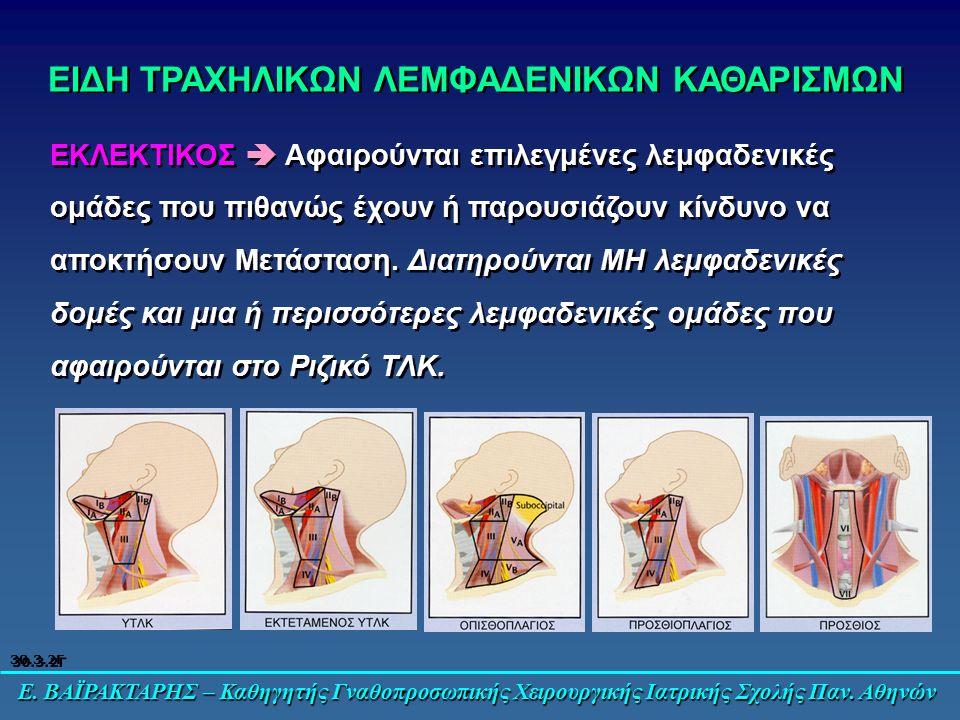 Ε. ΒΑΪΡΑΚΤΑΡΗΣ – Καθηγητής Γναθοπροσωπικής Χειρουργικής Ιατρικής Σχολής Παν. Αθηνών ΕΙΔΗ ΤΡΑΧΗΛΙΚΩΝ ΛΕΜΦΑΔΕΝΙΚΩΝ ΚΑΘΑΡΙΣΜΩΝ ΕΚΛΕΚΤΙΚΟΣ  Αφαιρούνται ε