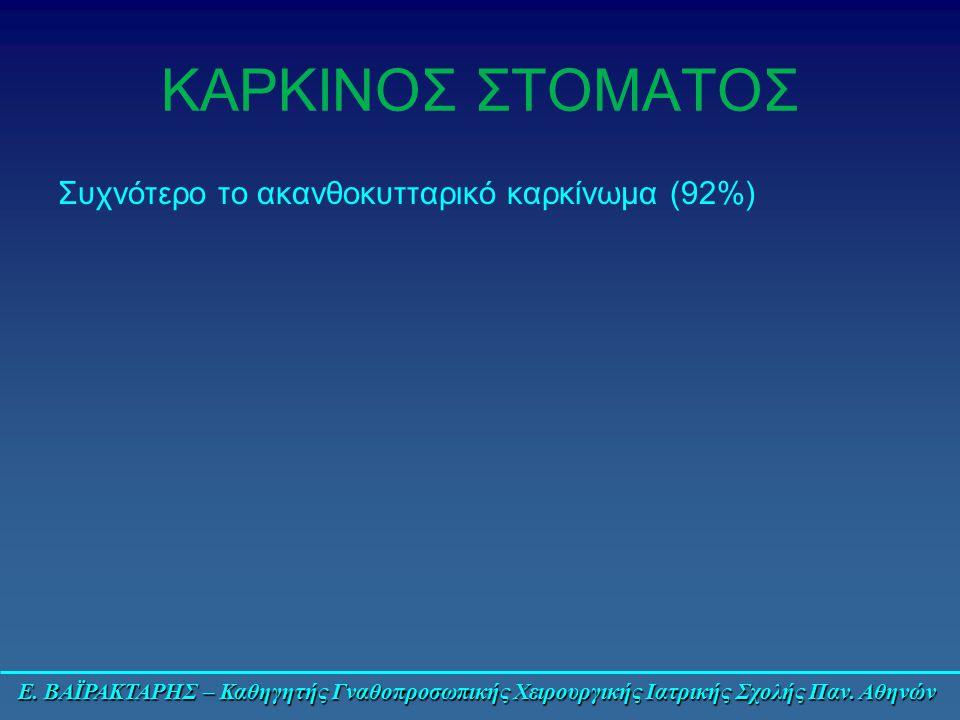 Ε. ΒΑΪΡΑΚΤΑΡΗΣ – Καθηγητής Γναθοπροσωπικής Χειρουργικής Ιατρικής Σχολής Παν. Αθηνών ΚΑΡΚΙΝΟΣ ΣΤΟΜΑΤΟΣ Συχνότερο το ακανθοκυτταρικό καρκίνωμα (92%)