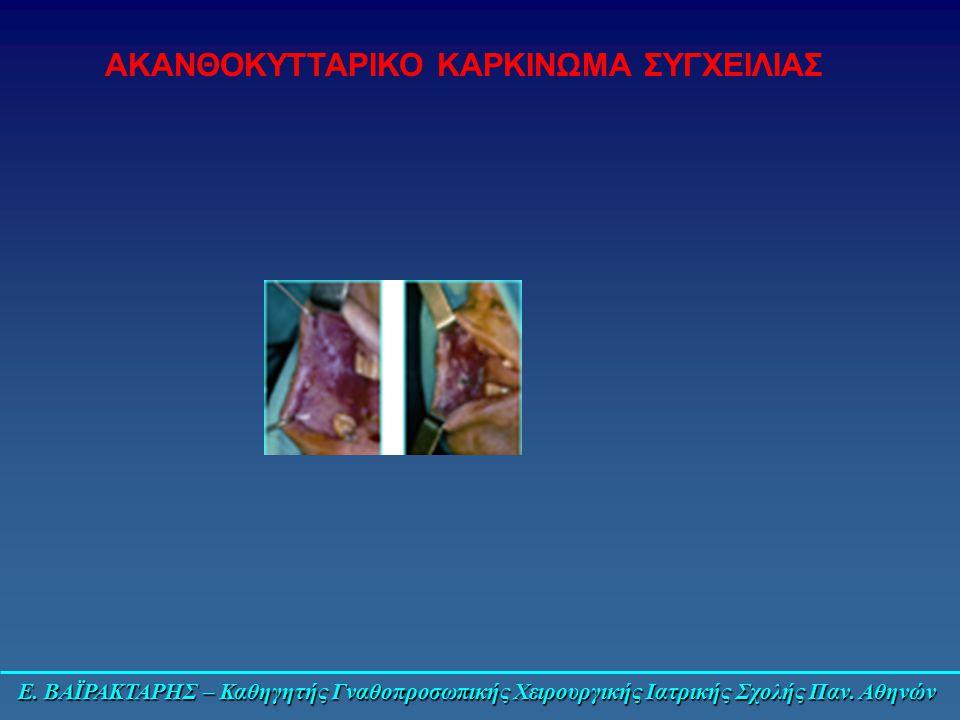 Ε. ΒΑΪΡΑΚΤΑΡΗΣ – Καθηγητής Γναθοπροσωπικής Χειρουργικής Ιατρικής Σχολής Παν. Αθηνών ΑΚΑΝΘΟΚΥΤΤΑΡΙΚΟ ΚΑΡΚΙΝΩΜΑ ΣΥΓΧΕΙΛΙΑΣ