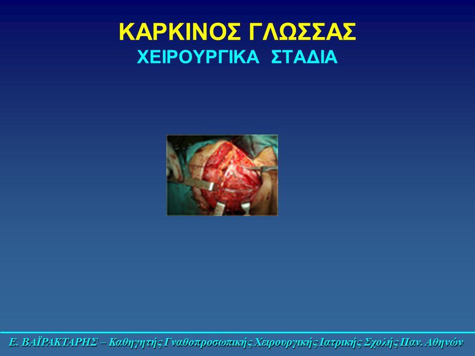 Ε. ΒΑΪΡΑΚΤΑΡΗΣ – Καθηγητής Γναθοπροσωπικής Χειρουργικής Ιατρικής Σχολής Παν. Αθηνών ΚΑΡΚΙΝΟΣ ΓΛΩΣΣΑΣ ΧΕΙΡΟΥΡΓΙΚΑ ΣΤΑΔΙΑ