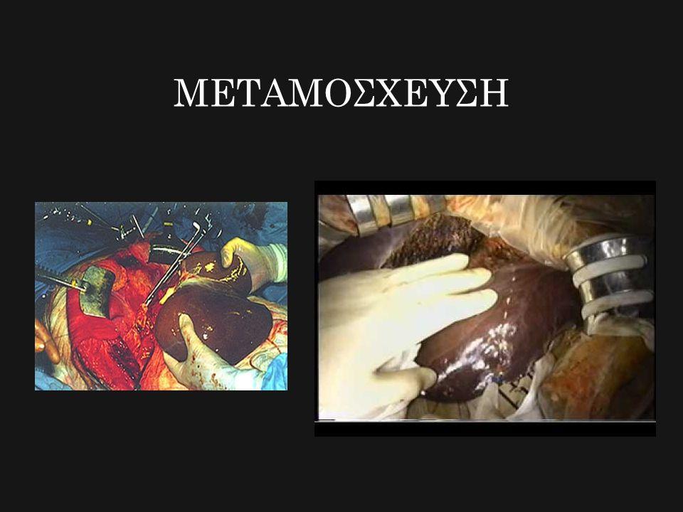 ΜΕΤΑΜΟΣΧΕΥΣΗ