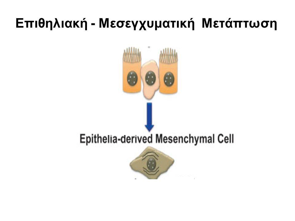 Επιθηλιακή - Μεσεγχυματική Μετάπτωση