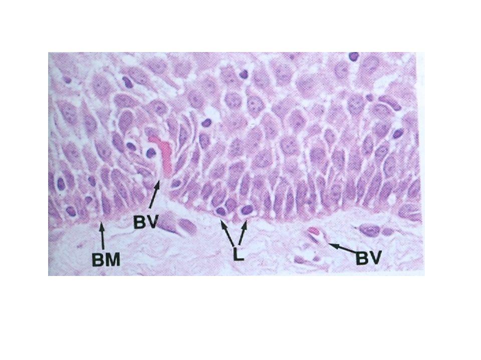 Μακροφάγα σχετιζόμενα με τον όγκο Συναθροίζονται υπό την επίδραση του CSF-1, ο οποίος εκκρίνεται από τα καρκινικά κύτταρα.