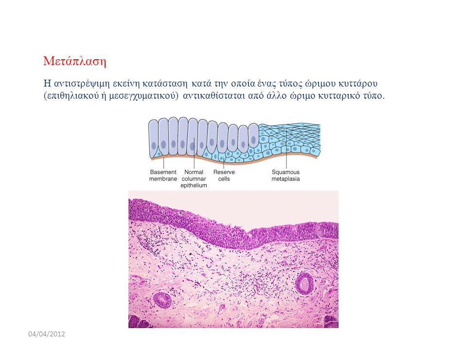 Μετάπλαση Η αντιστρέψιμη εκείνη κατάσταση κατά την οποία ένας τύπος ώριμου κυττάρου (επιθηλιακού ή μεσεγχυματικού) αντικαθίσταται από άλλο ώριμο κυττα