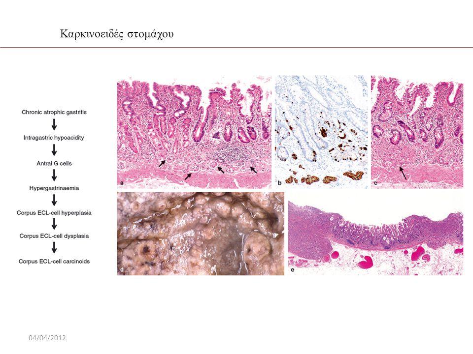 Καρκινοειδές στομάχου