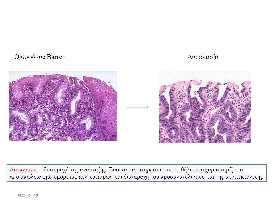 Οισοφάγος Barrett Δυσπλασία 04/04/2012 Δυσπλασία = διαταραχή της ανάπτυξης. Βασικά παρατηρείται στα επιθήλια και χαρακτηρίζεται από απώλεια ομοιομορφί