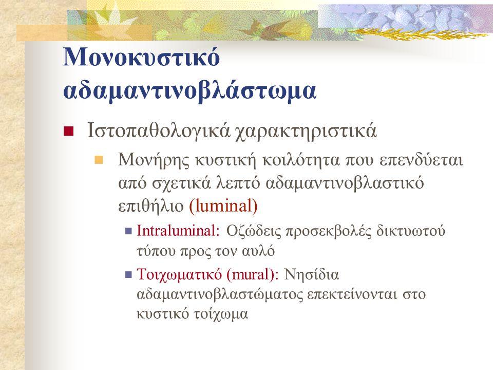 Μονοκυστικό αδαμαντινοβλάστωμα Ιστοπαθολογικά χαρακτηριστικά Μονήρης κυστική κοιλότητα που επενδύεται από σχετικά λεπτό αδαμαντινοβλαστικό επιθήλιο (luminal) Intraluminal: Οζώδεις προσεκβολές δικτυωτού τύπου προς τον αυλό Τοιχωματικό (mural): Νησίδια αδαμαντινοβλαστώματος επεκτείνονται στο κυστικό τοίχωμα