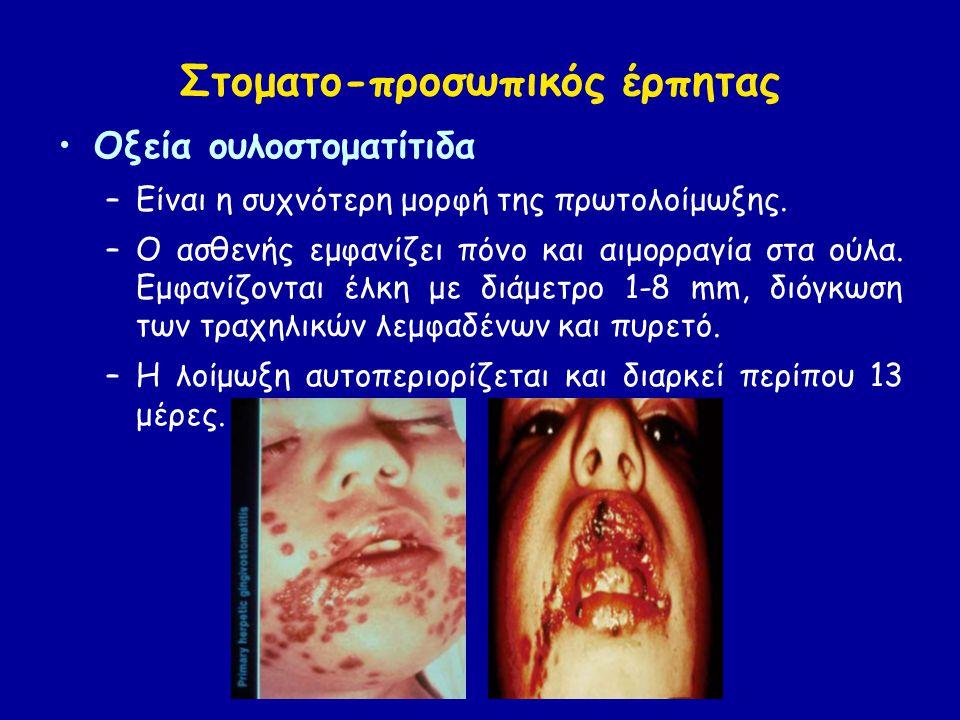 Στοματο-προσωπικός έρπητας Οξεία ουλοστοματίτιδα –Είναι η συχνότερη μορφή της πρωτολοίμωξης.