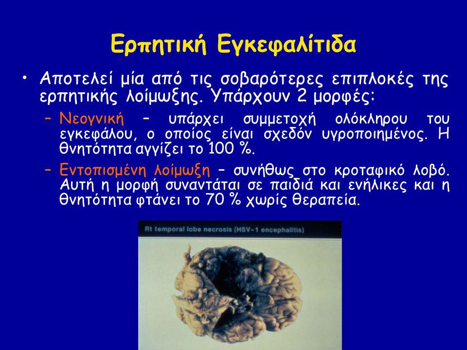 Ερπητική Εγκεφαλίτιδα Αποτελεί μία από τις σοβαρότερες επιπλοκές της ερπητικής λοίμωξης.