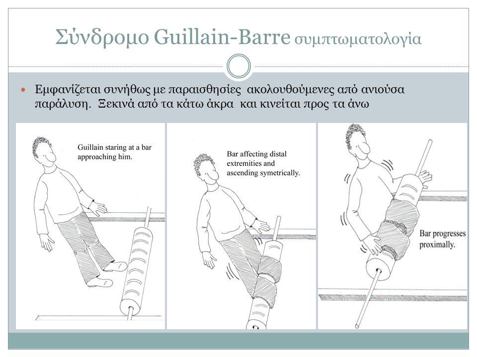 Σύνδρομο Guillain-Barre συμπτωματολογία Εμφανίζεται συνήθως με παραισθησίες ακολουθούμενες από ανιούσα παράλυση.