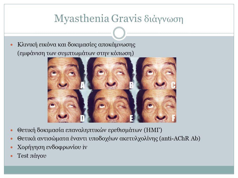 Myasthenia Gravis διάγνωση Κλινική εικόνα και δοκιμασίες αποκάμνωσης (εμφάνιση των συμπτωμάτων στην κόπωση) Θετική δοκιμασία επαναληπτικών ερεθισμάτων (ΗΜΓ) Θετικά αντισώματα έναντι υποδοχέων ακετυλχολίνης (anti-AChR Ab) Χορήγηση ενδοφρωνίου iv Test πάγου