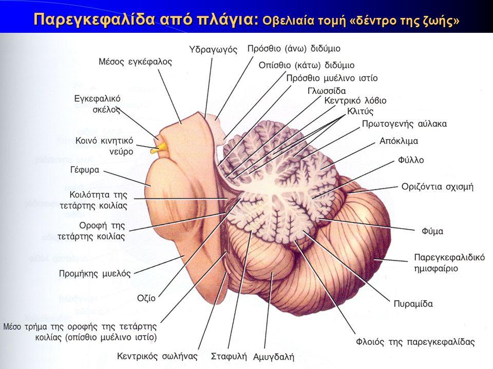 Παρεγκεφαλίδα από πλάγια: Οβελιαία τομή «δέντρο της ζωής»