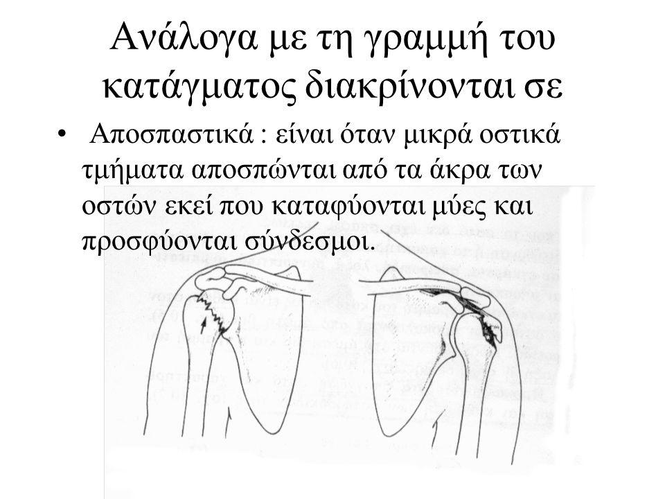 Ανάλογα με τη γραμμή του κατάγματος διακρίνονται σε Συντριπτικά : προκαλούνται από μεγάλη βία και το οστό σπάει σε κομμάτια.