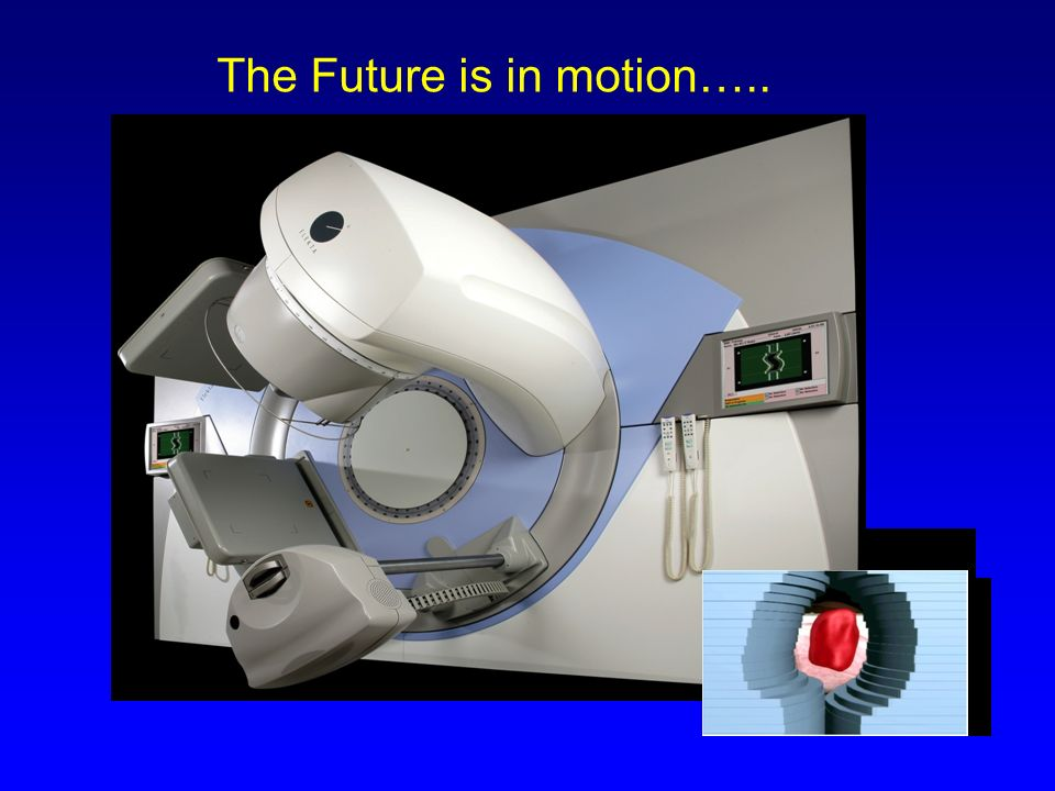 The Future is in motion…..