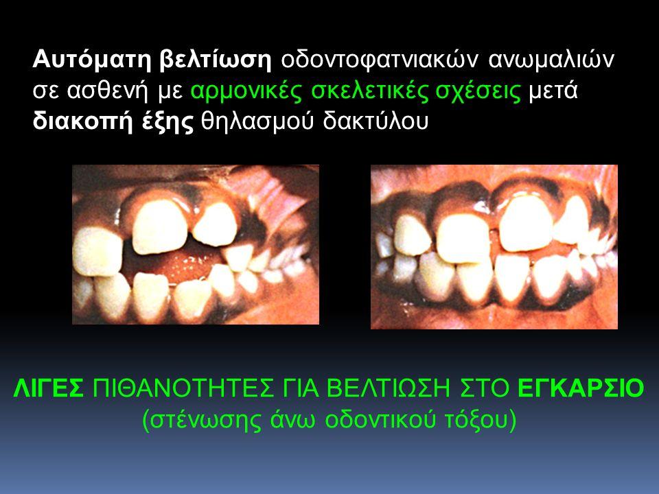 Αυτόματη βελτίωση οδοντοφατνιακών ανωμαλιών σε ασθενή με αρμονικές σκελετικές σχέσεις μετά διακοπή έξης θηλασμού δακτύλου ΛΙΓΕΣ ΠΙΘΑΝΟΤΗΤΕΣ ΓΙΑ ΒΕΛΤΙΩ
