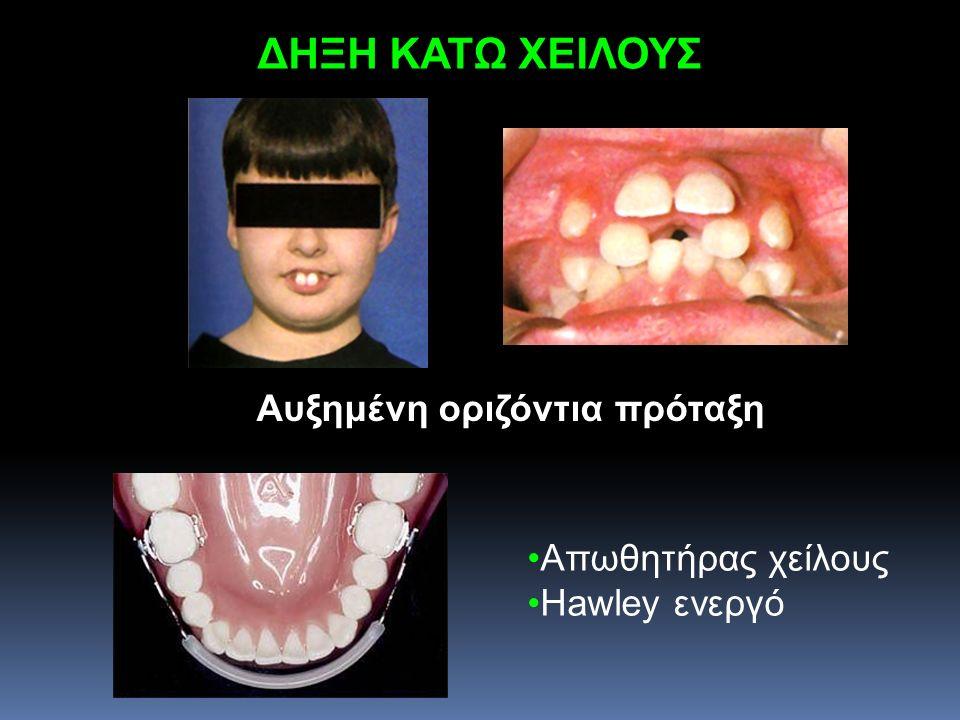 ΔΗΞΗ ΚΑΤΩ ΧΕΙΛΟΥΣ Αυξημένη οριζόντια πρόταξη Απωθητήρας χείλους Hawley ενεργό