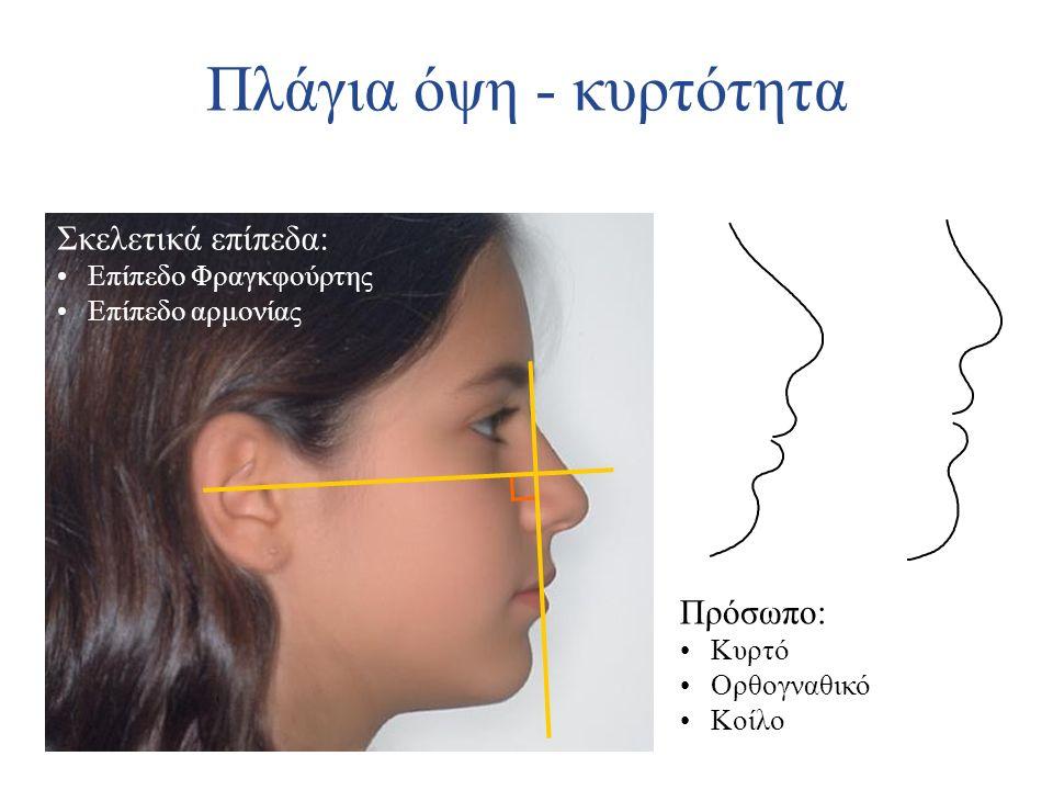 Πλάγια όψη - κυρτότητα Σκελετικά επίπεδα: Επίπεδο Φραγκφούρτης Επίπεδο αρμονίας Πρόσωπο: Κυρτό Ορθογναθικό Κοίλο