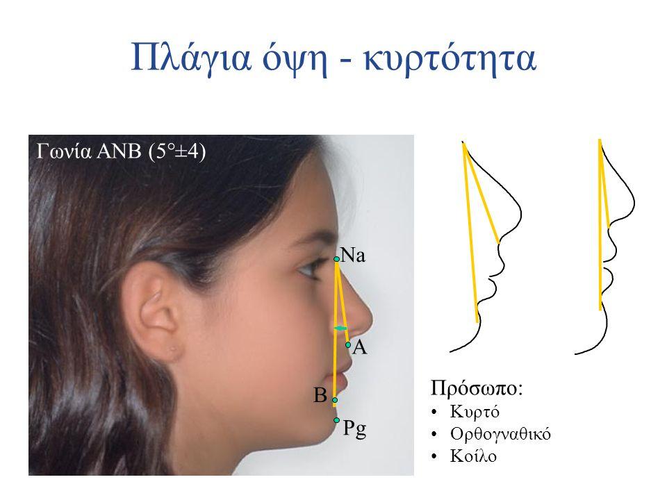 Πλάγια όψη - κυρτότητα Γωνία ANB (5°±4) Pg B Πρόσωπο: Κυρτό Ορθογναθικό Κοίλο A Na