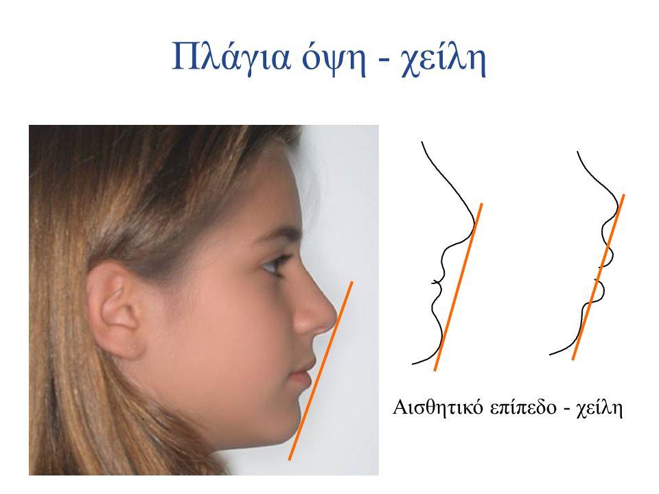 Πλάγια όψη - χείλη Αισθητικό επίπεδο - χείλη