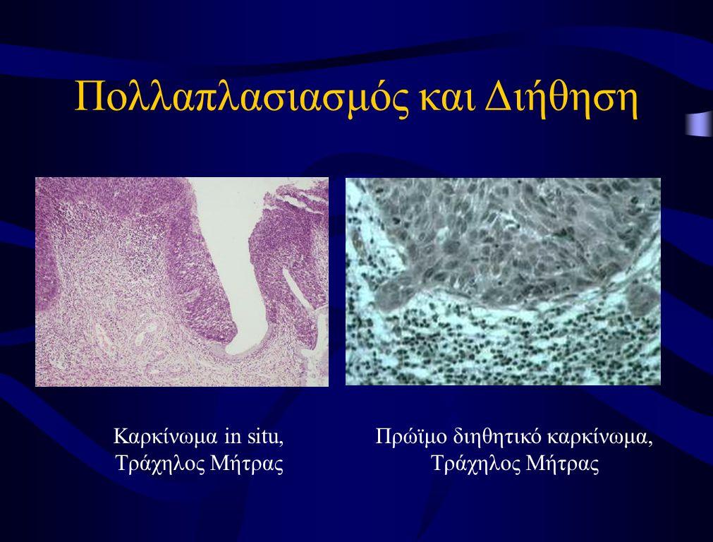 Τρόποι Καρκινικής Εξάπλωσης Κατά συνέχεια ιστού –Πολλαπλασιασμός εντός του ιστού/οργάνου προέλευσης –Εξάπλωση και διήθηση σε παρακείμενες φυσιολογικές δομές και όργανα –Επέκταση σε ανατομικές κοιλότητες (π.χ.
