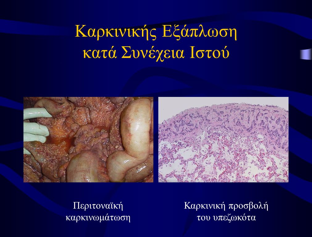 Καρκινικής Εξάπλωση κατά Συνέχεια Ιστού Περιτοναϊκή καρκινωμάτωση Καρκινική προσβολή του υπεζωκότα