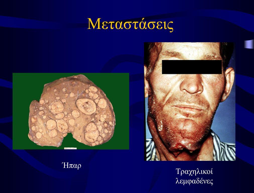 Πολυφασική Καρκινογένεση Υπερπλασία Επιθηλίου Δυσπλασία Καρκίνωμα in situ Διηθητικό Καρκίνωμα 9p 9p,17p 5p,4q 9p,17p 11q,13q 14q 9p,17p 11q,13q 14q Ακανθοκυτταρικό Καρκίνωμα Στόματος