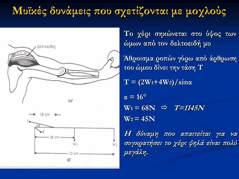 Το χέρι σηκώνεται στο ύψος των ώμων από τον δελτοειδή μυ Άθροισμα ροπών γύρω από άρθρωση του ώμου δίνει την τάση Τ Τ = (2W 1 +4W 2 )/sinα α = 16  W 1 = 68N  T=1145N W 2 = 45N Η δύναμη που απαιτείται για να συγκρατήσει το χέρι ψηλά είναι πολύ μεγάλη.