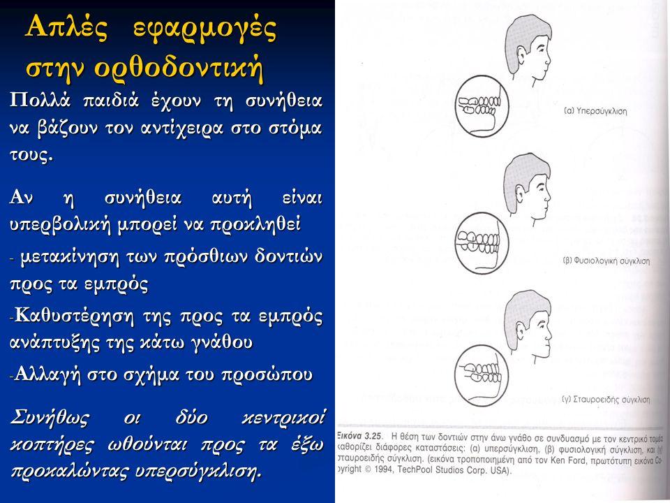 Απλές εφαρμογές στην ορθοδοντική Πολλά παιδιά έχουν τη συνήθεια να βάζουν τον αντίχειρα στο στόμα τους.