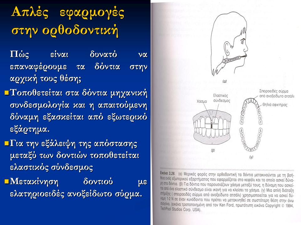 Απλές εφαρμογές στην ορθοδοντική Πώς είναι δυνατό να επαναφέρουμε τα δόντια στην αρχική τους θέση; Τοποθετείται στα δόντια μηχανική συνδεσμολογία και η απαιτούμενη δύναμη εξασκείται από εξωτερικό εξάρτημα.