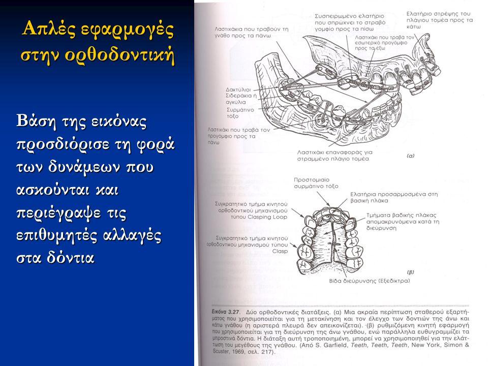 Απλές εφαρμογές στην ορθοδοντική Βάση της εικόνας προσδιόρισε τη φορά των δυνάμεων που ασκούνται και περιέγραψε τις επιθυμητές αλλαγές στα δόντια